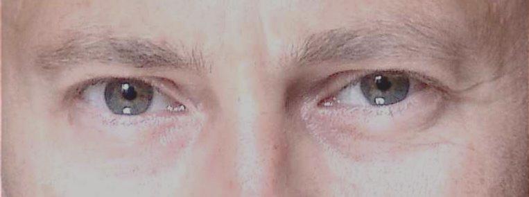 Die Neigung der Augen – nach innen fallend
